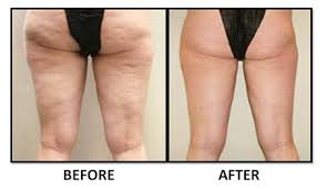 Endermotherapy2