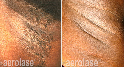 hair-removal2-pair
