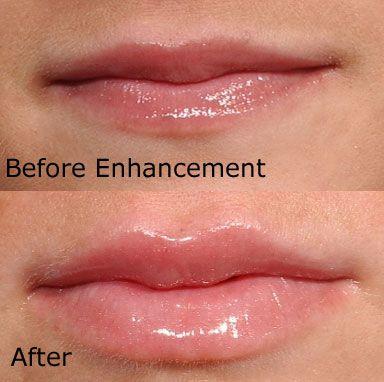 lips5